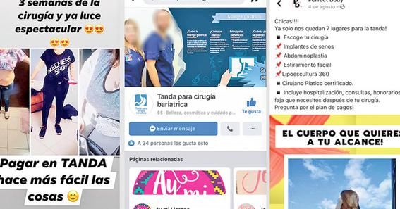 alertan por moda de tandas para cirugias esteticas en redes sociales 1