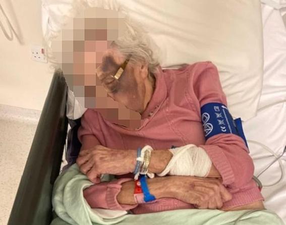 abuela abusada sexualmente golpeada en asilo de ancianos 1