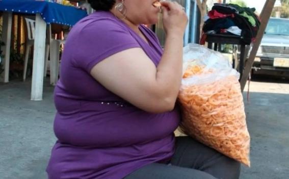 senadores aprueban que cirugias contra obesidad sean practicadas en el sector salud 1