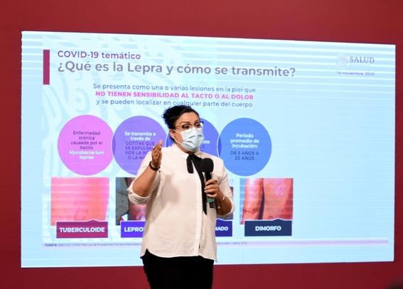 se han detectado 74 casos de lepra en mexico y advierten que no se transmite facilmente 1