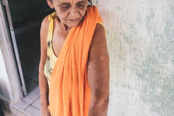 se han detectado 74 casos de lepra en mexico y advierten que no se transmite facilmente 2