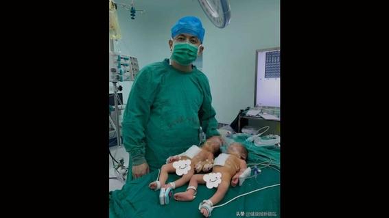 medicos chinos logran separar exitosamente a gemelas que nacieron unidas por el estomago 2