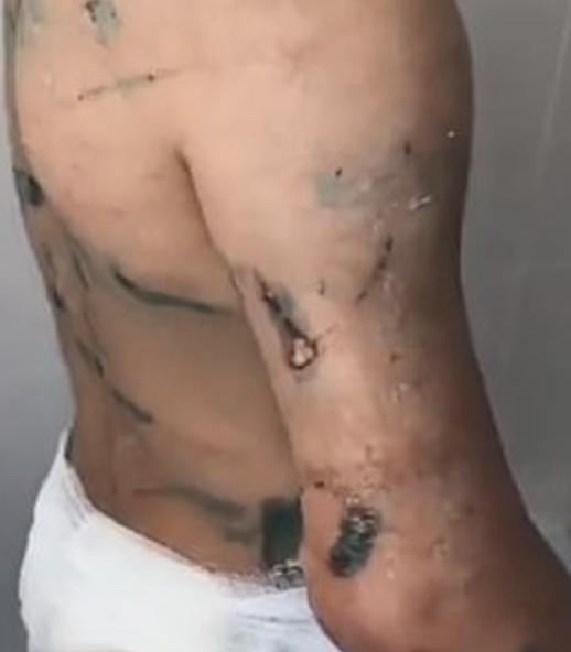 nina brazo amputado tia golpeada rusia 1
