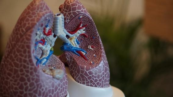 que es la tuberculosis 2