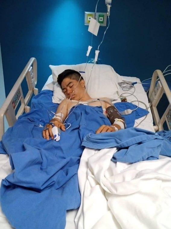 gobernador guerrero ofrece disculpa joven perdio pierna disparo policias 1