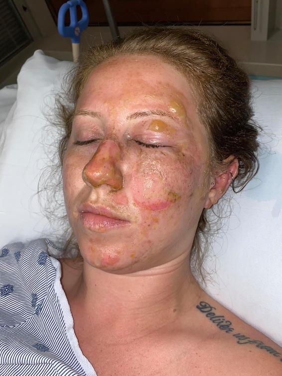 video meseros queman el rostro turista en bar de cancun 1