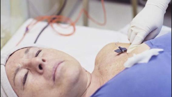 mujer con cancer de mama