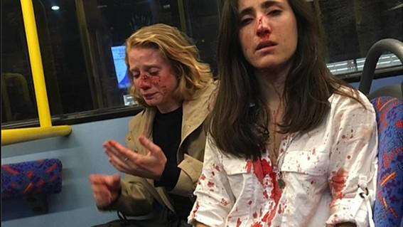 la pareja de mujeres fue golpeada por varios hombres en una agresion homofoba en un autobus en londres