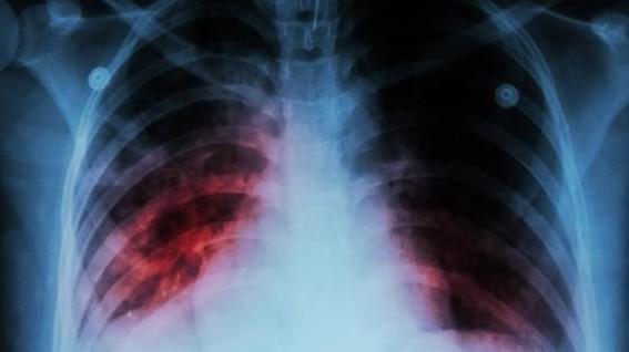 desarrollanvacunaparaquelospulmonesseaninmunesfrentaatuberculosis