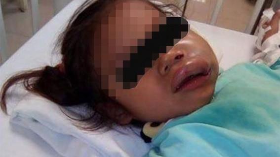 una menor de tres anos recibio severos golpes mientras se encontraba en el jardin de ninos en el que estudia en tamaulipas