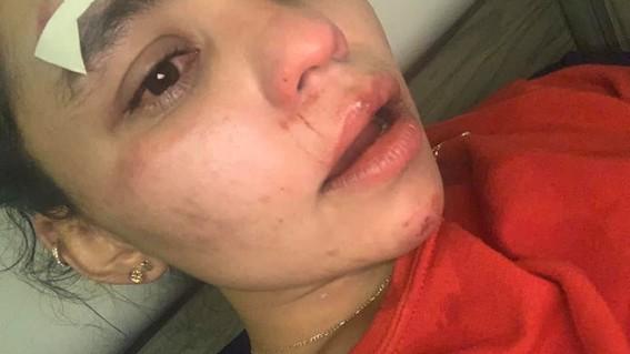 denuncia a empleado de mercedesbenz por golpear a mujer formula e
