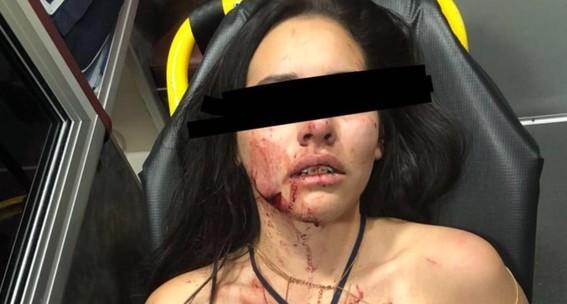 mujer agredida por mauricio salazar se recupera tras agresion en la roma norte