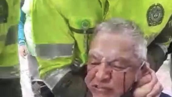 don nestor novoa abuso policial bogota colombia