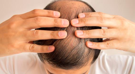 la perdida de cabello podria ser un nuevo sintoma del covid19