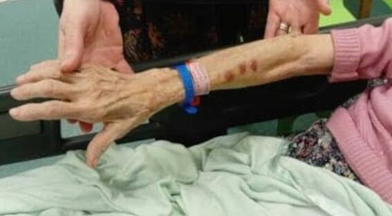 abuela abusada sexualmente golpeada en asilo de ancianos
