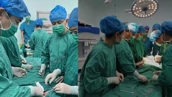 medicos chinos logran separar exitosamente a gemelas que nacieron unidas por el estomago