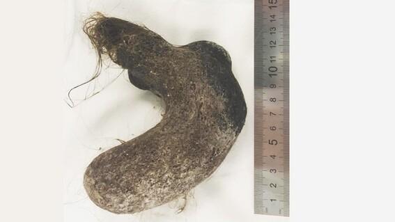 cirujanos extraen una bola de cabellos del estomago de una nina